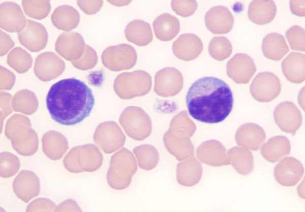 que son los linfocitos